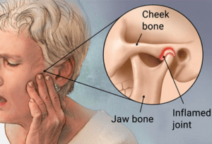 Relief from TMJD is just around the corner with help from your local chiropractor