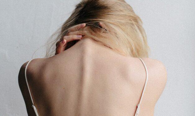 Scoliosis & chiropractic care: restore a more normal posture